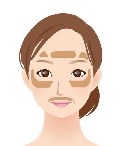 肌の老化 肝斑