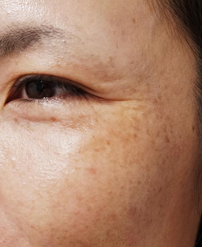 肌の老化 しみ