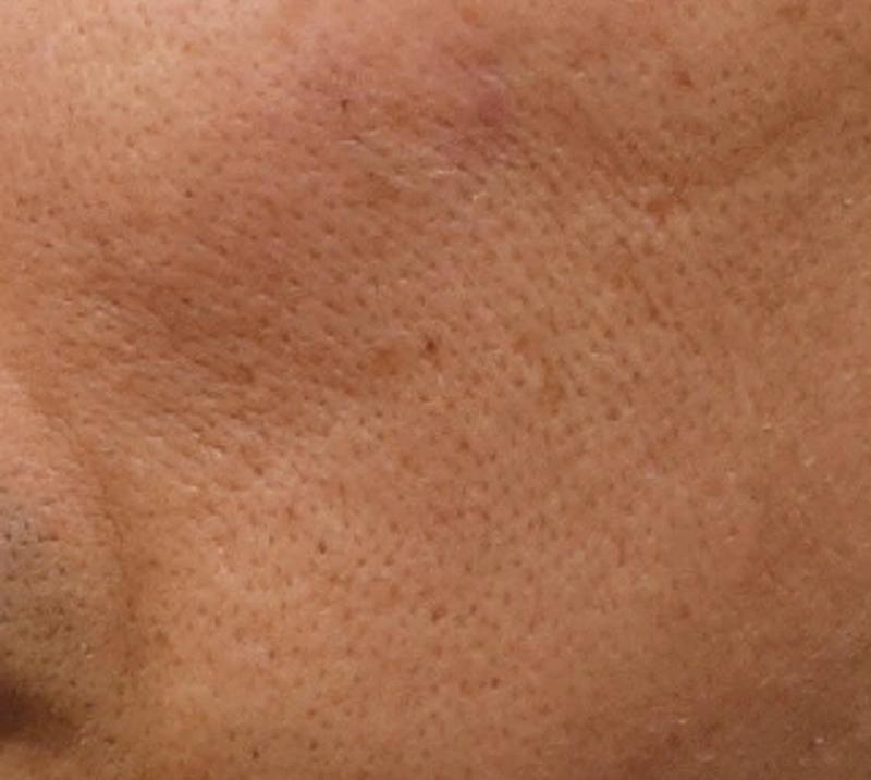 肌の老化 毛穴