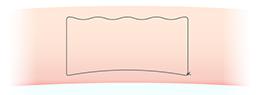 二重埋没法(エステティックアイ )かけ方の図