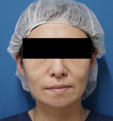 ミントリフトⅡミニS 手術前