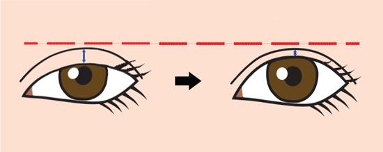 目が開くと二重は狭くなる