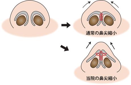 通常の鼻尖縮小との違い 鼻尖形成