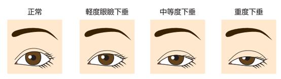 眼瞼下垂-まぶたの裏のたるみ