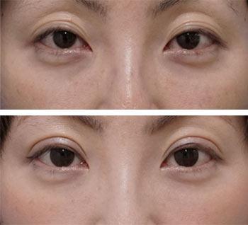 ベビーコラーゲン症例写真7