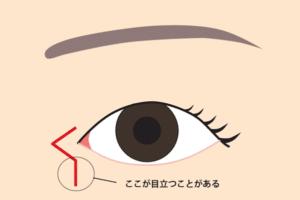 Z形成傷跡目立つ部分