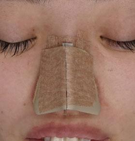 鼻尖形成-3D法-ギプス固定中