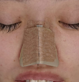鼻尖形成 3D法 ギプス固定