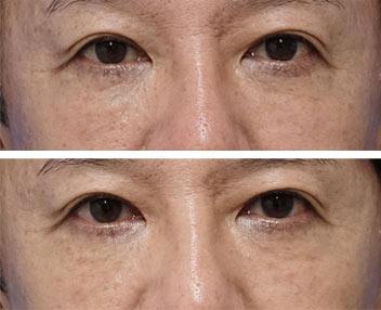 ベビーコラーゲン症例写真6