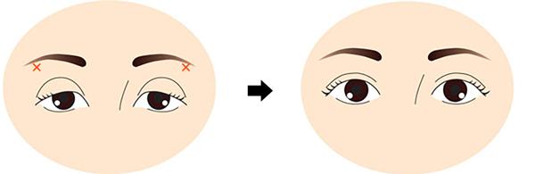目の上たるみヒアルロン酸リフトアップ