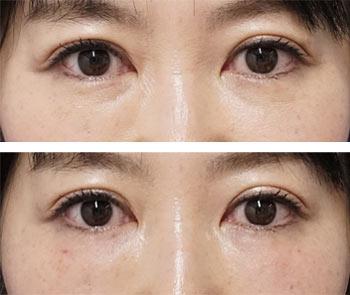 ベビーコラーゲン症例写真5