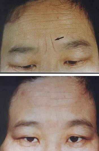 ベビーコラーゲン 症例写真0