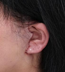 もとび式フェイスリフト 左耳傷