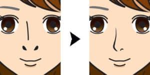 鼻孔縁延長の変化