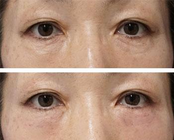 ベビーコラーゲン症例写真3