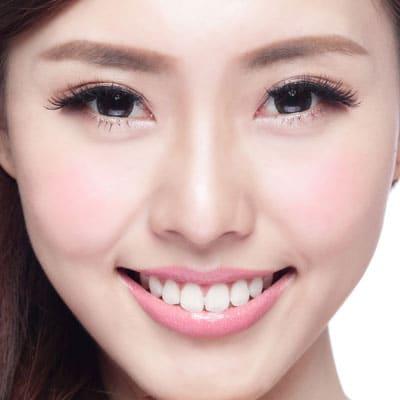 鼻翼縮小(内側法・flap法:小鼻の幅を狭める)
