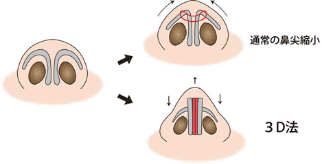 通常の鼻尖縮小と3D法 鼻翼軟骨