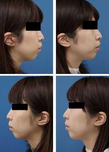 クレヴィエル症例写真13アゴ顎