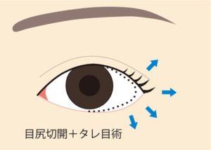 目尻切開+タレ目術