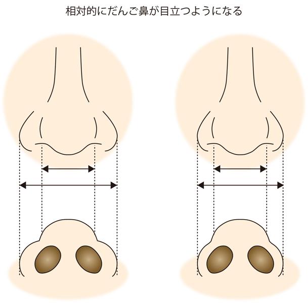 小鼻縮小、相対的に団子鼻が目立つようになる