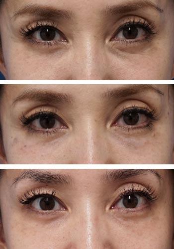 ベビーコラーゲン症例写真1