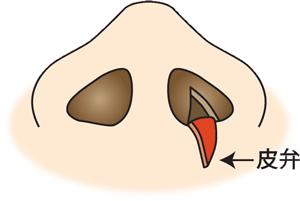 鼻翼縮小(フラップ法)内側法