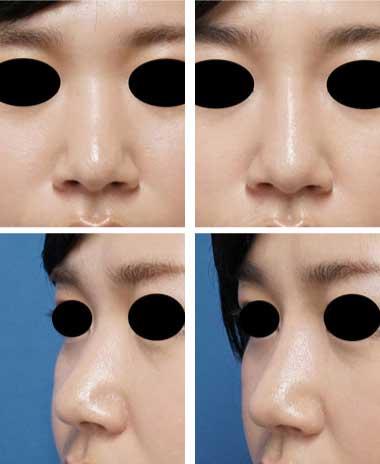 クレヴィエル症例写真7鼻