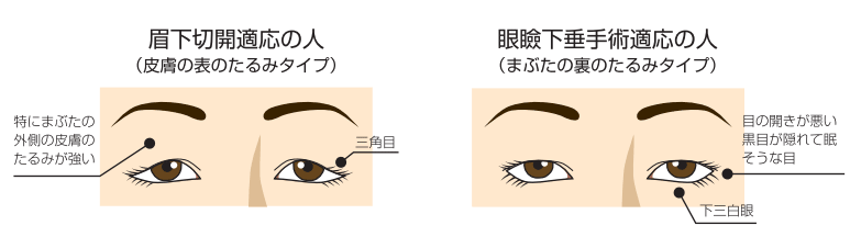 眉下切開-たるみのタイプ