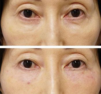 ベビーコラーゲン症例写真4