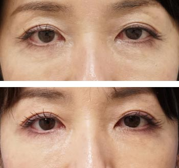 ベビーコラーゲン症例写真2