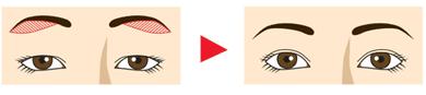 眉下切開 目の上のたるみを改善
