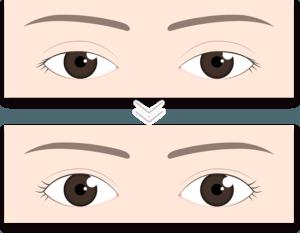 眼瞼下垂の手術の変化イメージ