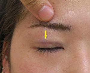針で穴を開けて眼窩脂肪を除去