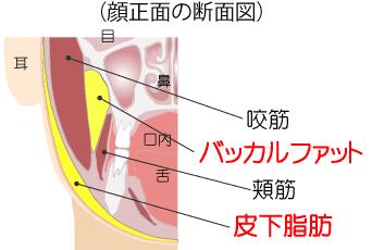 バッカルファット解剖