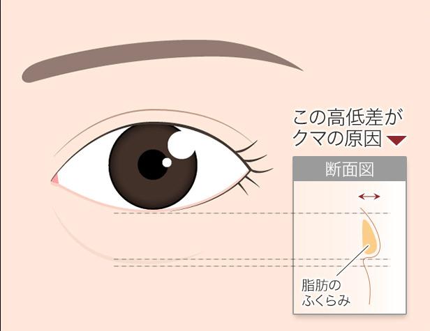 目の下のクマ図 眼窩脂肪 断面
