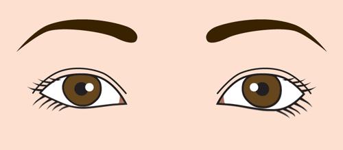 目の開き 左右差