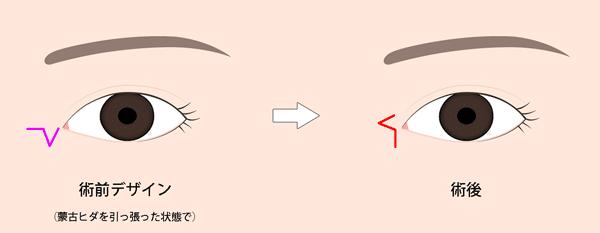 目頭切開Z形成術前後の切開線