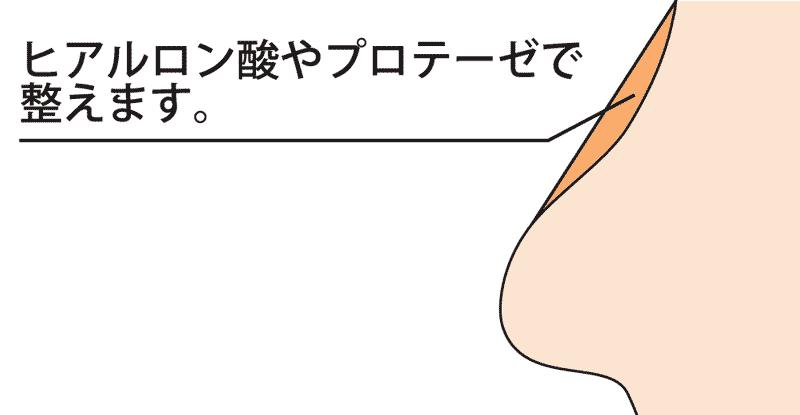 オウム鼻(ピンチノーズ)の修正方法