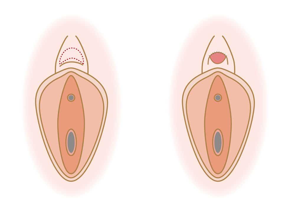 クリトリス(陰核)包茎