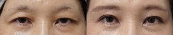 眉下切開-症例写真1