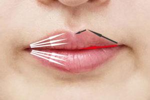 唇の注入方法
