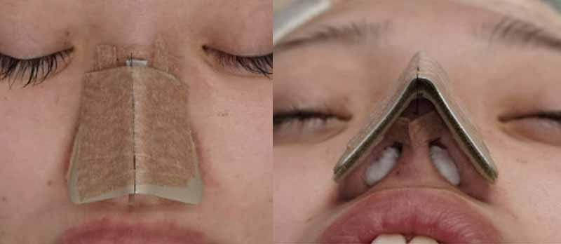 鼻尖縮小手術で鼻固定