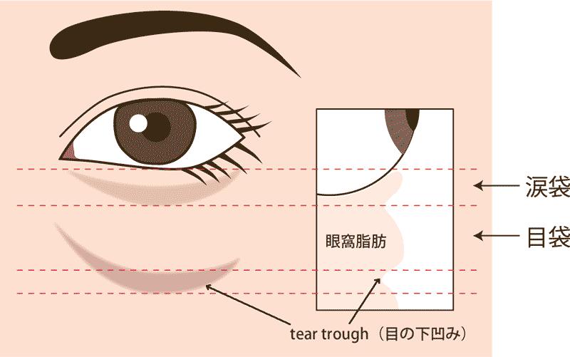 涙袋のヒアルロン酸注入断面図