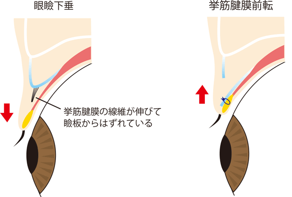 挙筋前転術イメージ