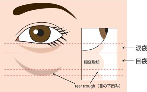 目の下脂肪取り+目の下脂肪注入(コンデンス) 原因図