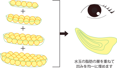 目の下脂肪注入の層注入のイメージ