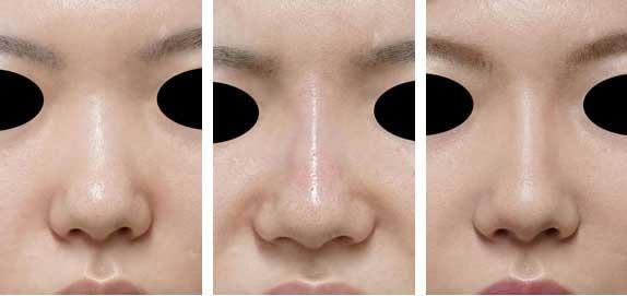 クレヴィエル症例写真11鼻