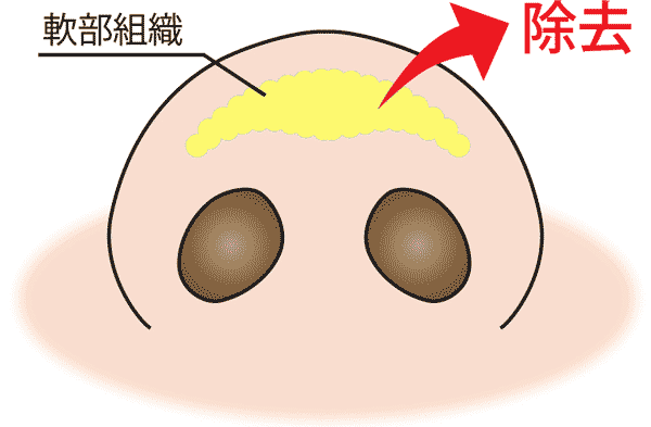 団子鼻軟部組織の除去 3D法