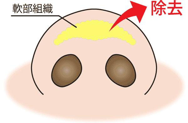 団子鼻軟部組織の除去