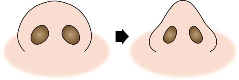鼻尖縮小変化 団子鼻修正